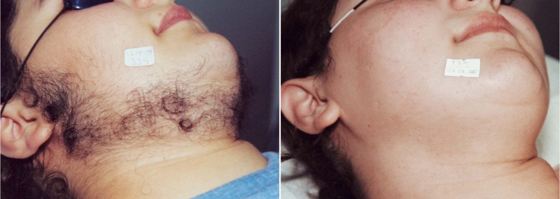 hair-removal-beard