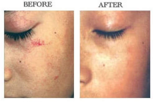 vein-removal-face-cheek-