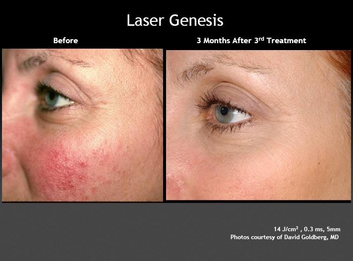 Laser-Genesis1