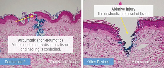 ablative-vs-atraumatic2