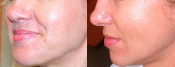 dermaroller-skin-tightening-1-590x225