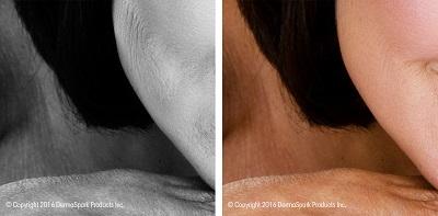 dermaroller-skintexture-thickening