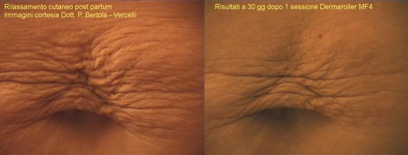 dermaroller-stretch-marks-1-590x225