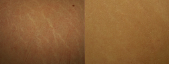 dermaroller-stretch-marks-2-590x225