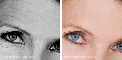 dermaroller-wrinkle-reduction