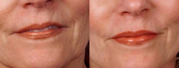 dermaroller-wrinkles-1-590x225